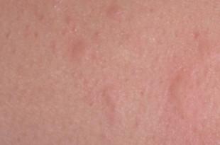 Nesselsucht (Urtikaria)