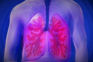 Allergisches Asthma - Asthma bronchiale