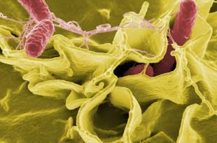 Das unspezifische Immunsystem