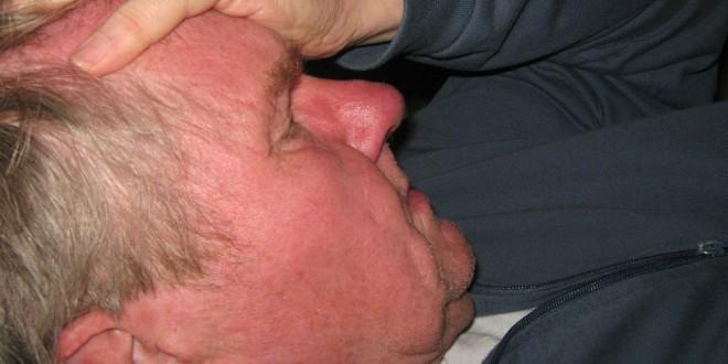 Allergie Formen - Allergietypen 1-4