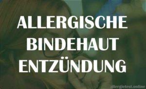 Allergische Bindehautentzündung - Ratgeber