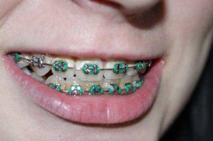 Allergie gegen Zahnspange