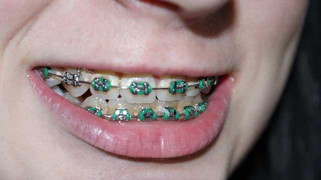 Allergie gegen Zahnspange möglich?